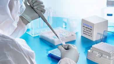 تصویر از موارد استفاده و تفسیر نتایج تست PCR و سرولوژی کروناویروس
