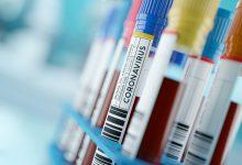تصویر از واکسن کرونا و واکنش بدن به آن؛ واکسینه شویم یا نه؟