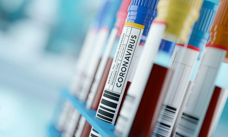 واکسن کرونا و آلرژی